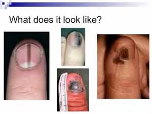 fungus in nail picture 9