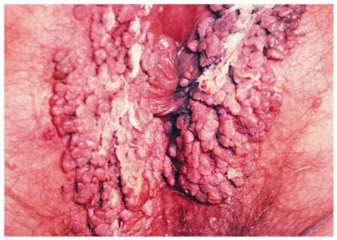 genital warts on the cervix picture 7