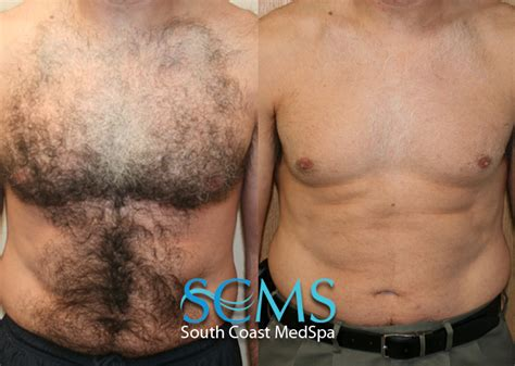 male sex hair removal vids picture 11