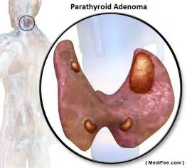 can weight be attributed to parathyroid picture 5