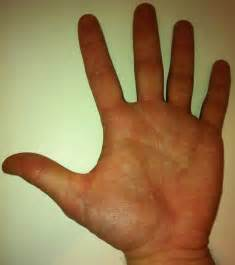 warts palm hand picture 1