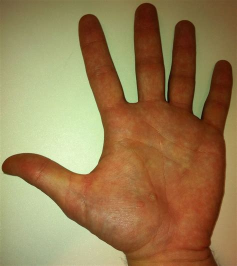 symptoms tiny warts on palm picture 9