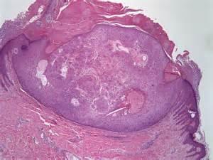 follicular ademoma thyroid picture 18