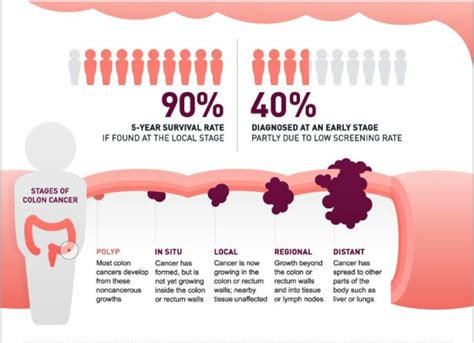 what does it mean to have t3n2m0 stage colon cancer picture 11