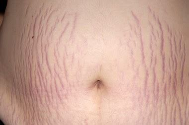 can infected stretch mark cause stomach pain picture 3