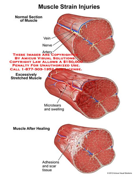 muscle injuries picture 2