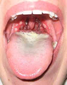 herpes of the throat picture 11