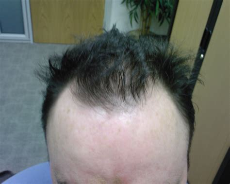 proscar hair growth picture 1