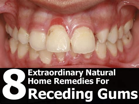 treatment for healthy gums and teeth picture 4