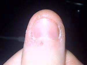 get rid of warts under fingernail picture 6
