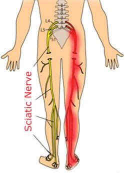 acupressure point for pain in sacroiliac joint picture 3