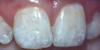discolored teeth fluorosis picture 17