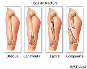 joint dislocations and osteoporosis picture 17