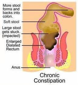 constipation and colon diseases picture 14