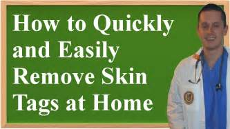 skin tag removal at home picture 7