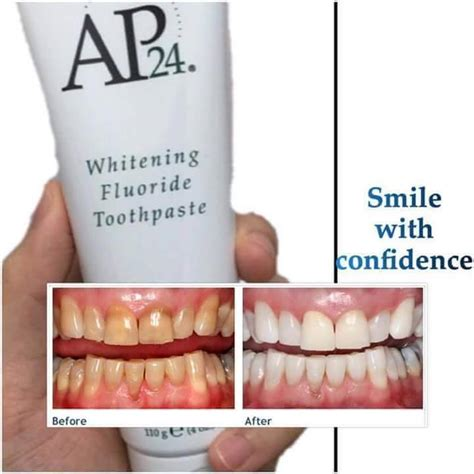 new york tooth whiten picture 18