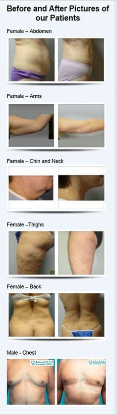 natural lipo makeover reviews picture 10