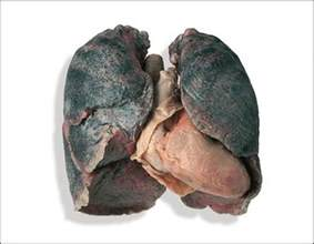 when you smoke what does your liver look picture 3