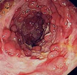 abdominal pain and colon cancer picture 7