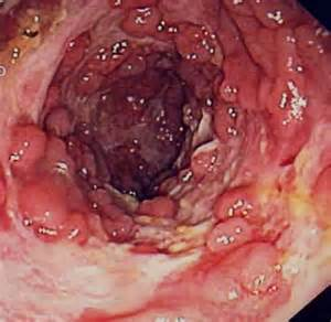 disorders of the colon picture 3