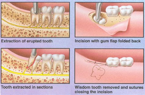 dentist take out teeth picture 7