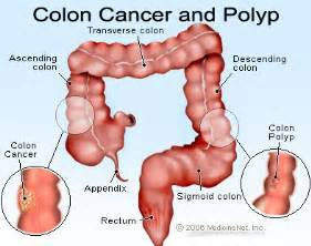 prognosis of cancer that penetrates the wall of the colon picture 6
