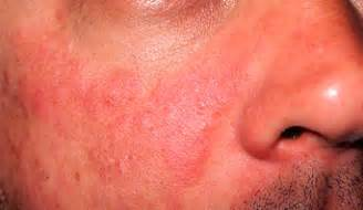 lupus and acne skin problems picture 5