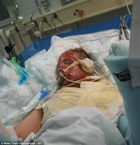 intensive care burn units for skin donation picture 3