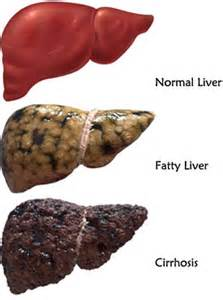cirrhosis of the liver due to alcohol picture 15