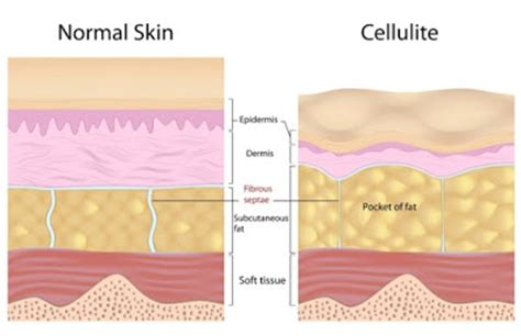 Arkansas cellulite treatment picture 9