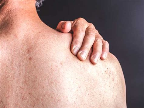 menopause itchy skin picture 10