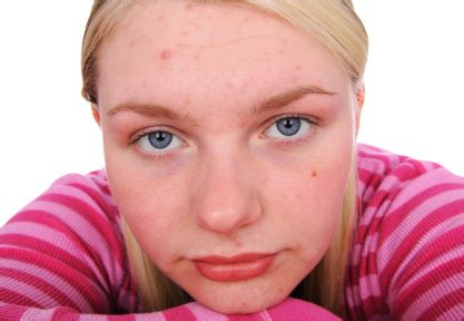 teen age acne picture 3
