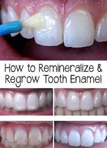 can natural teeth grow picture 5
