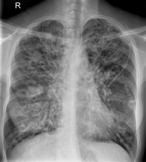 cystic fibrosis in the breast picture 11