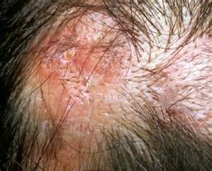 hair and skin sores picture 6