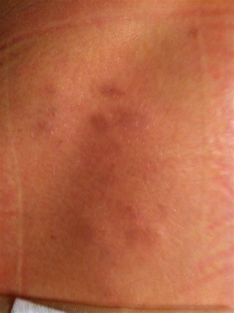 skin parasites 2014 picture 3