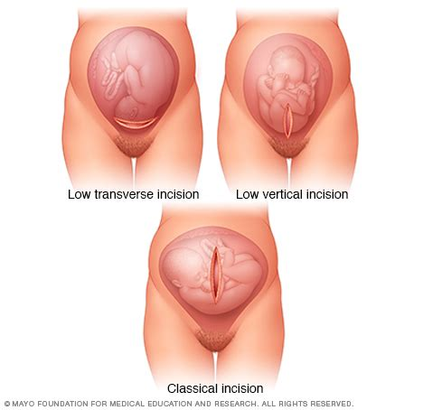 what do genital herpes look like picture 10