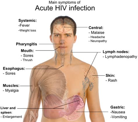 skin lesions of hiv positive patients picture 7