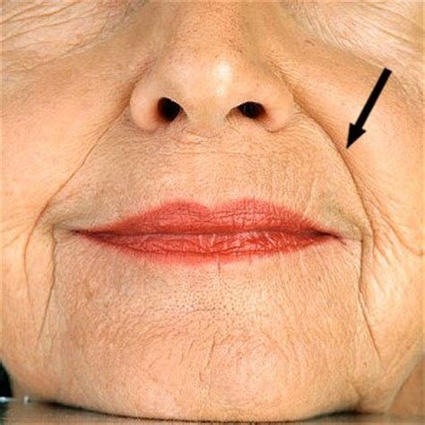 corner of mouth wrinkles picture 1