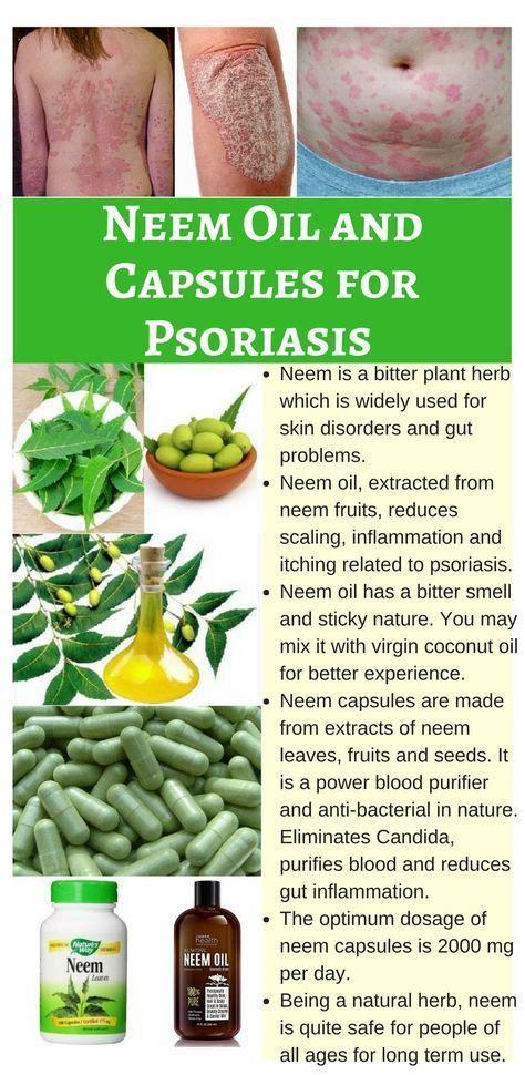 herbal psoriasis remedies picture 6