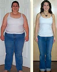 weight loss sugery picture 9