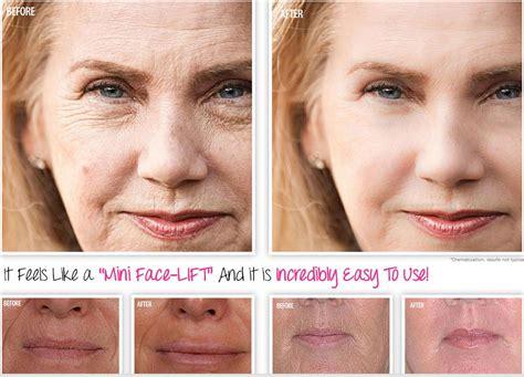 skin care cream work revitol aging picture 8
