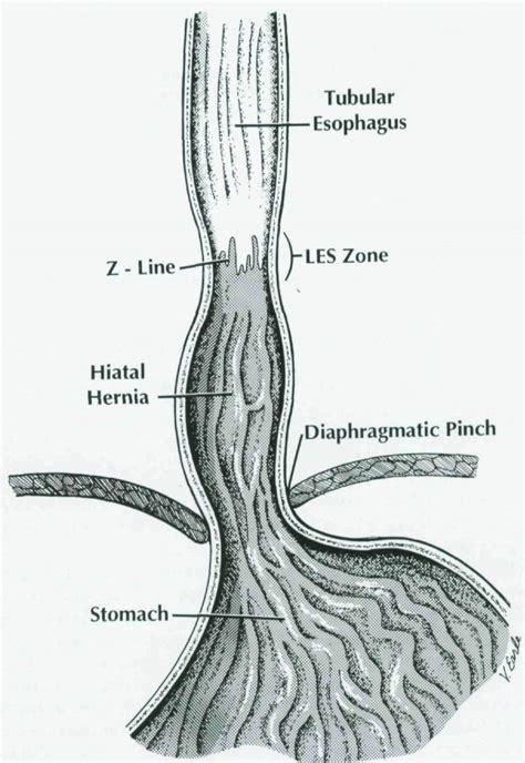 gastrointestinal irregular z line picture 9