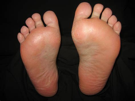 feet burning swelling hands swelling lexapro picture 4