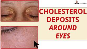 Cholesterol deposits picture 1