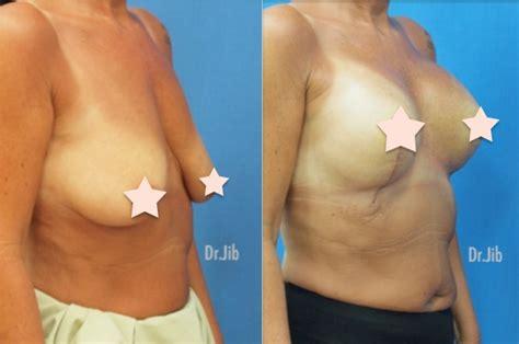 dr. soloman breast enhancement pictures picture 3