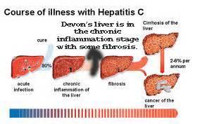 healthy liver hep c magazine picture 13