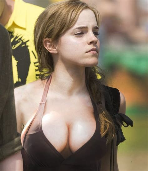alabama breast enhancement picture 1