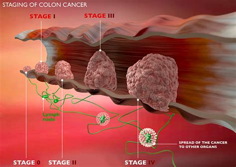 stages of colon cancer picture 10
