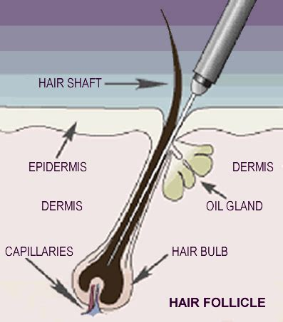 iodine and oil hair removal does it work picture 10